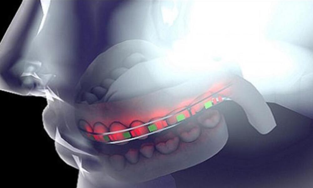 Ultra Thin Battery for 3D-printed Braces